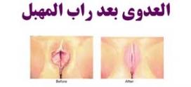 العدوى بعد راب المهبل